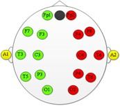 Схема розміщення електродів